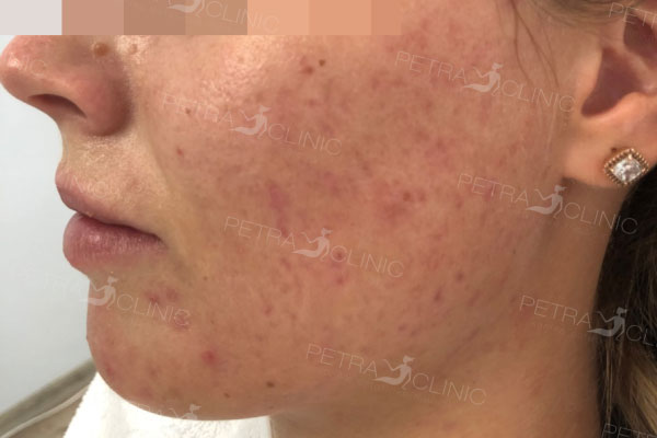Acne treatment result after 2 procedures of two methods combination
