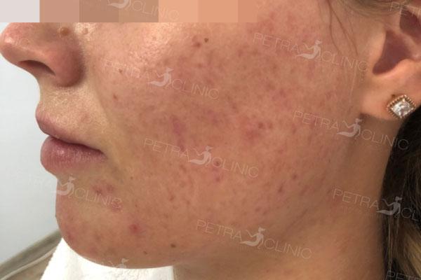 Результат от лечения рубцов постакне помощью комбинации 2 метод после двух терапий