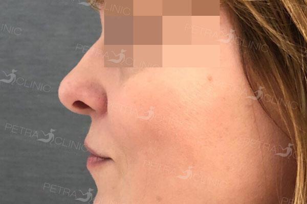 P�ed z�krokem modelace nosu