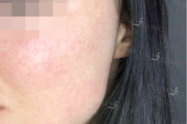 Smoothing of acne scars on the cheeks
