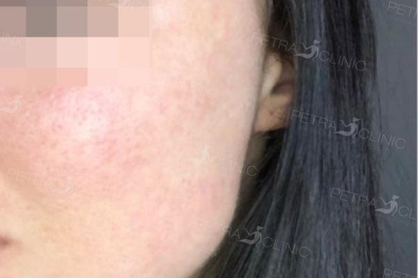 Результат процедуры разглаживания рубцов постакне на щеках