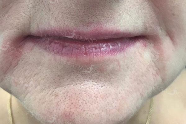 Лифтинг уголков губ