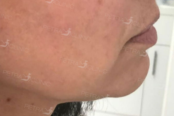 Laser fat reduction in the chin area