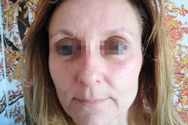 Laser fat reduction in the whole face area