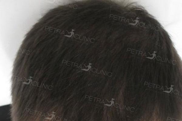 Усиление роста волос благодаря мезотерапии