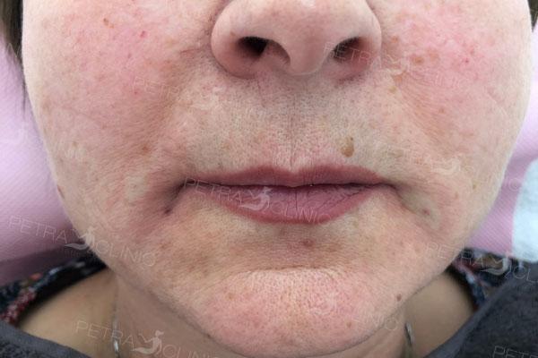 Эффект омоложения кожи лица с помощью жидкого лифтинга