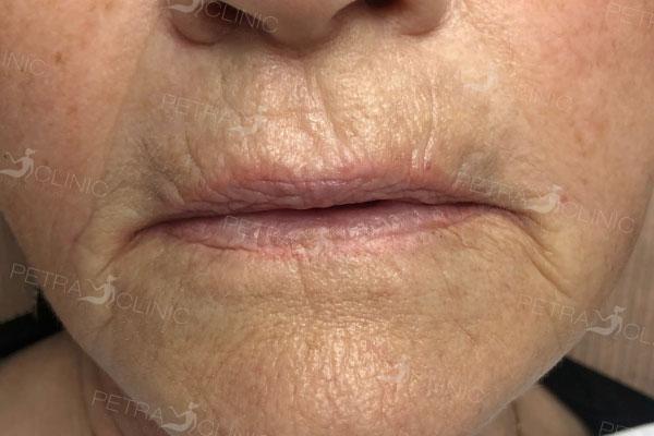 Разглаживание морщин около губ с помощью жидкого лифтинга