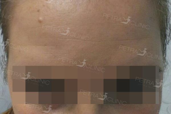 Разглаживание морщин чела с помощью гиалуроновой кислоты
