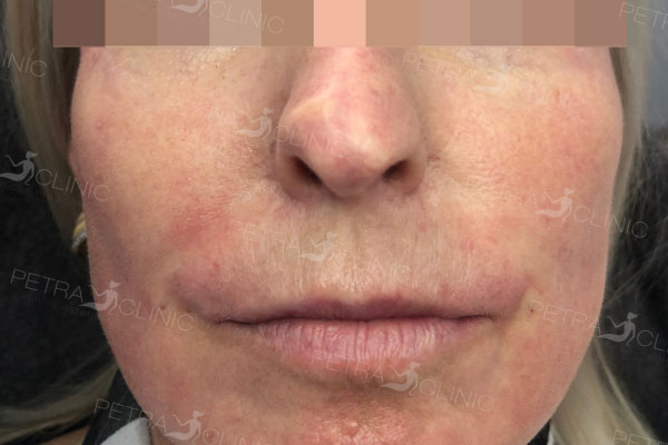 Skin tightening in the lips area by Liquid lifting