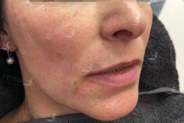 Подтягяжка кожи в области щек с помощью жидкого лифтинга
