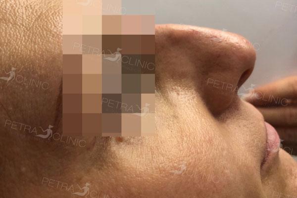 Результат моделирования носа с помощью гиалуроновой кислоты