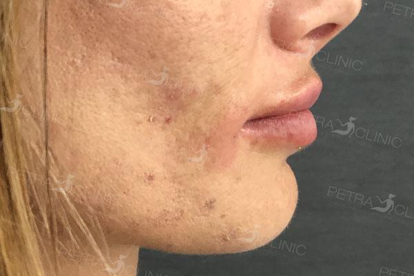 Результат моделирования губ с помощью аппликаций гиалуроновой кислоты