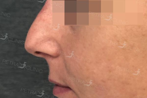 Das Ergebnis einer Nasenmodellierung mithilfe von Hyaluronsäure