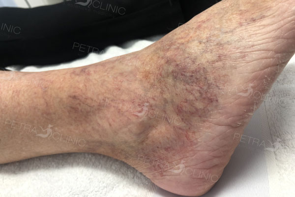 Reduction of red veins on legs with the help of laser