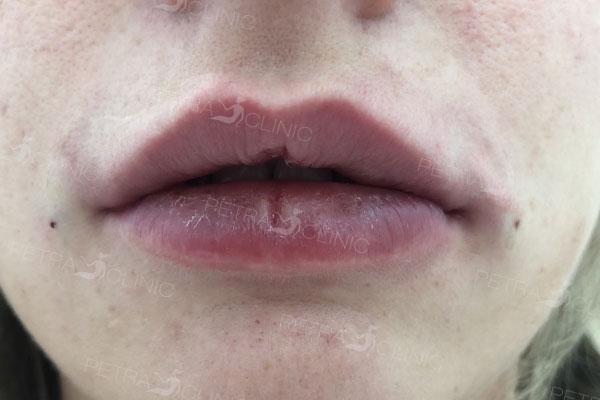 Результат увеличение губ с помощью аппликаций гиалуроновой кислоты