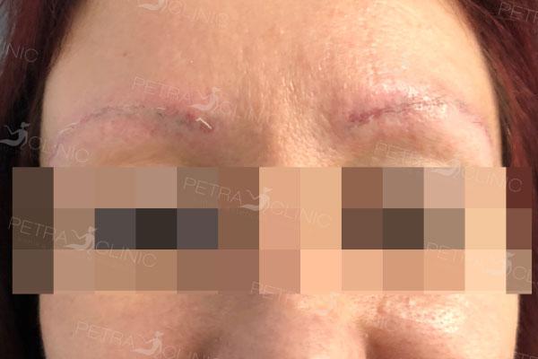 Результат лазерного удаления перманентного макияжа