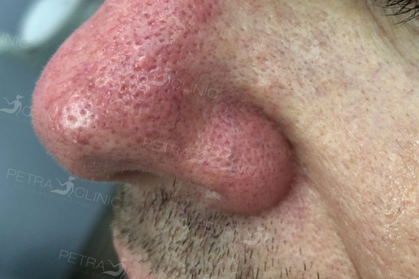 Reduction of red veins with the help of laser around the nose