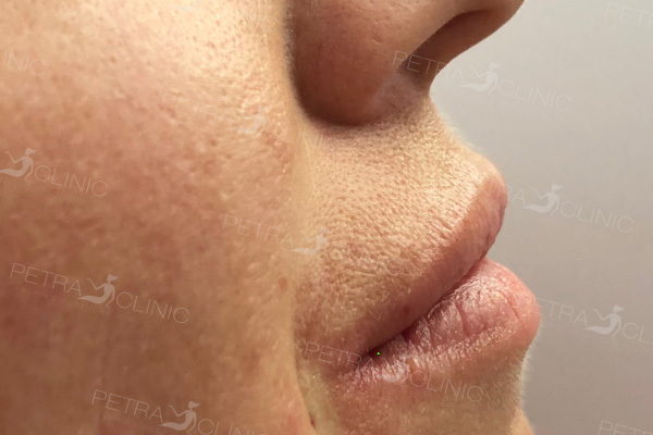 Slight lips correction with the help of hyaluronic acid