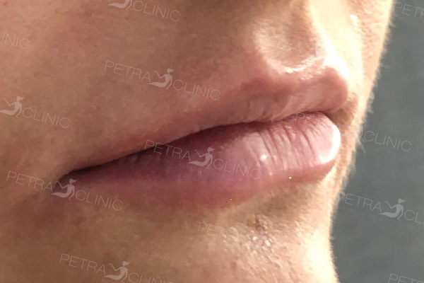 Lips augmentation with the help of hyaluronic acid