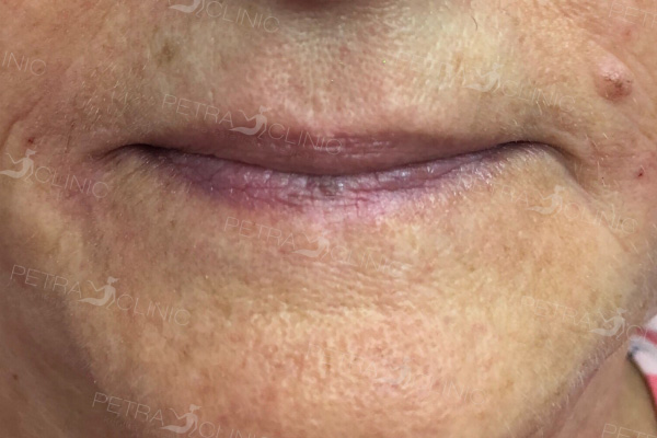 Smoothing out lips area wrinkles by hyaluronic acid