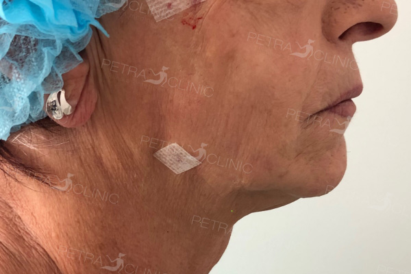 Skin tightening by the thread lifting