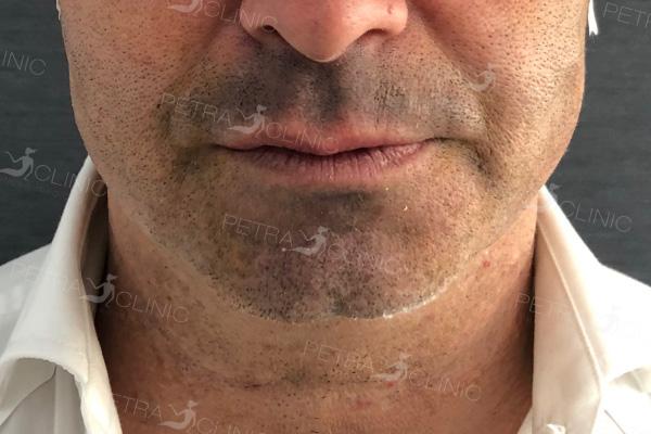 Verschmälern des unteren Gesichtsbereich mit Fäden für Männer