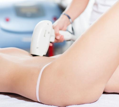 Non-invasive liposuction - Petra Clinic